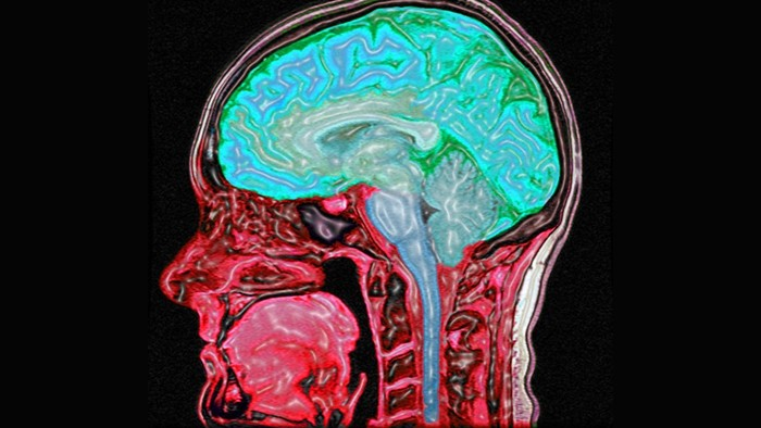 articles about brain injury