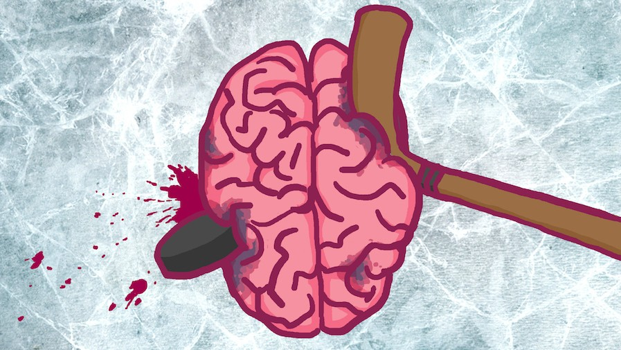 How Concussions Ruined Michel Petit and Steve Payne's NHL Careers