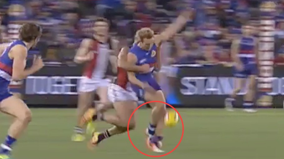 Australian Rules Football Player Kicks Himself Hard Enough to Break His Own Leg