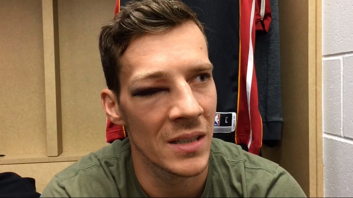 Does Goran Dragić Have a Mouth for an Eye?