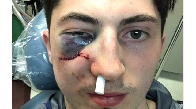 Columbus' Zach Werenski Out for Playoffs After a Phil Kessel Shot Broke His Face